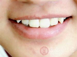 牙结石怎么去除 牙结石为什么会长在牙龈下面