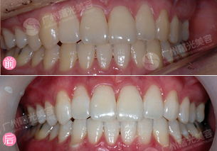 ...超声波洁牙手术过程,超声波洁牙多少钱,超声波洁牙前后对比图 ...