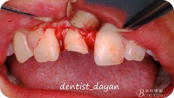 种植牙前必须查阅的种植流程!