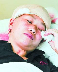 活割女人皮-11岁女孩掉进沸腾大锅烫伤 母亲... 商报记者