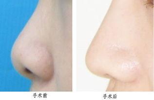 往会影响到你的鼻子整体的美观度,所以不同的形态选择何种解决方式...