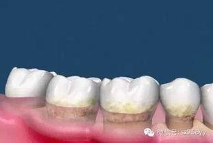 ...要到牙科诊所来洗牙,医生首先会用超声波将牙面上比较坚硬的牙结...