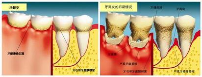 双顶径88mm是符合几周-牙龈炎有各种类型,但最常见的、发病率最高的是慢性单纯性龈炎,这...