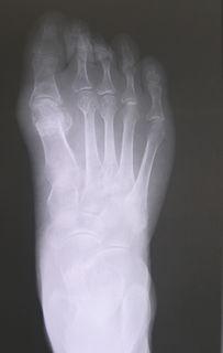 典型病例4 拇外翻矫正手术前后对照 图