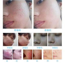 1 痤疮、脂溢性脱发、毛囊炎、清螨、清除皮肤过敏源;   2 皮肤美白...