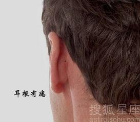 ...耳部垂直而下的尽头位置.耳根有痣的男人要注意,身体容易出现...