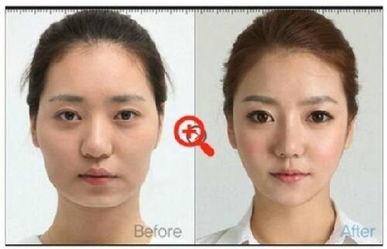 硅胶假体隆鼻 女人美丽的标志从鼻梁开始