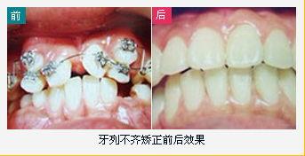 牙齿矫正注意事项