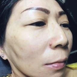 脸上晒斑什么样?晒斑能去掉吗?晒斑怎么消除?