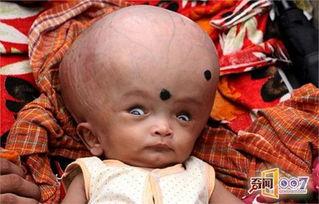 印度男童头部是正常人三倍大 遭父母遗弃