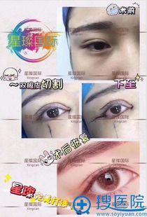 上海星璨国际怎么样 网红医院整形价格表和医生双眼皮案例曝光