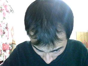 肾亏型脱发图片,肾虚型斑秃,m型脱发
