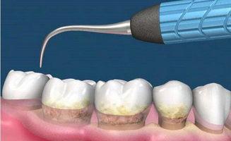 超声波洗牙好不好 快速去除牙结石 图