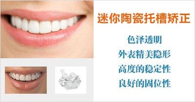 如何看待牙齿矫正问题