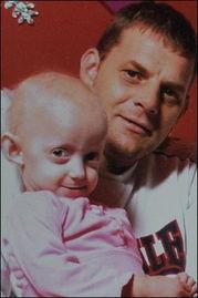 ...利奥特和爸爸在一起.-英7岁女童患罕见早衰症 貌似老人皮肤绿色