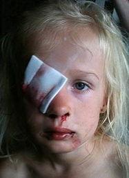 英国6岁女童遭斗牛犬狂咬 右眼受伤险变瞎