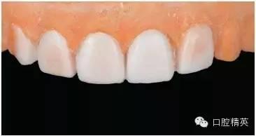 ...助的多学科联合前牙美学修复病例