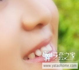 ...家帮忙看看我的牙齿有没有必要矫正 多图