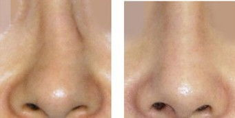 矫正歪鼻手术的恢复期需要多久
