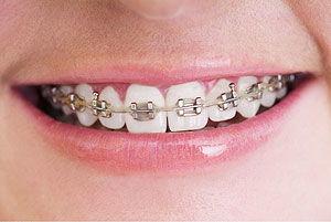 牙齿矫正的过程是怎么样的