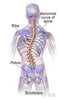 脊柱侧弯怎么办