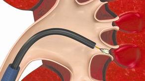 软性肾镜,可由尿道,经膀胱、输尿管进入肾脏,直达肾脏(肾盂内)...