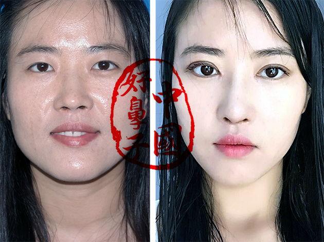 鼻子整形手术的风险有多大