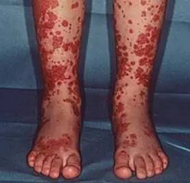 过敏性紫癜后出现血尿,就是紫癜性肾炎吗