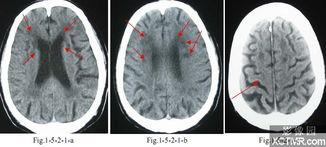 ...园XCTMR.com-皮层下动脉硬化性脑病 颅脑CT诊断学