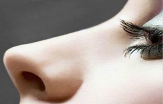 鼻子整形后遗症,鼻子整形的危害,鼻子整形的风险