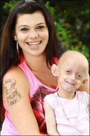 ...利奥特和妈妈在一起幸福地笑着.-英国7岁女童患罕见早衰症 皮肤呈...