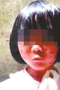 网络上流传的婷婷被虐受伤照片.-6岁女童疑遭虐待 生父被人肉接数...